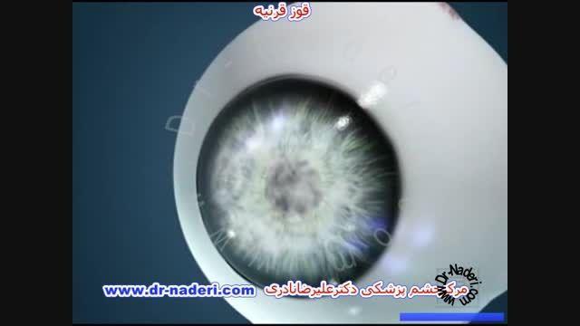 پیوند تمام ضخامت قرنیه-مرکز چشم پزشکی دکتر علیرضا نادری