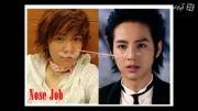 عکس بازبگران کره ای قبل و بعد از عمل
