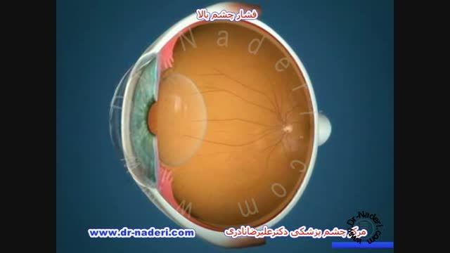 فشار چشم بالا - مرکز چشم پزشکی دکتر علیرضا نادری