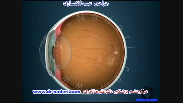 جراحی عیوب انکساری - مرکز چشم پزشکی دکتر علیرضا نادری
