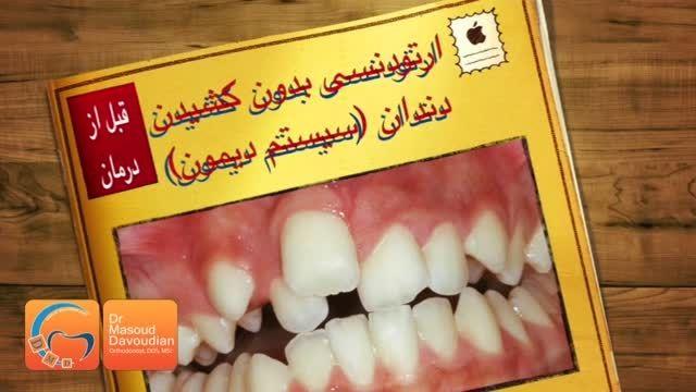 قبل و بعد ارتودنسی بدون کشیدن دندان| دکتر مسعود داودیان