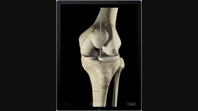درمان جراحی شکستگی اسخوان تیبیا