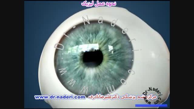 اصلاح آستیگماتیسم با عمل آب مروارید- مرکز چشم دکترنادری