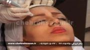 آموزش پاکسازی پوست با دستگاه میکرودرم ابریژن