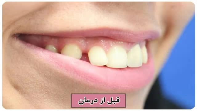 ارتودنسی و افزایش طول تاج دندان با لیزر