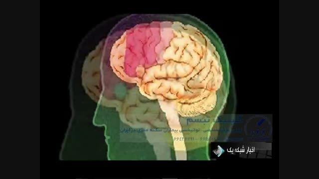 کلیپ خبری سکته مغزی، کلینیک تبسم، دکتر روزبه کاظمی