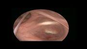 اندوسکوپی مغز-درمان هیدروسفالی بروش اندوسکوپی