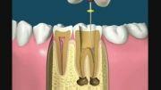 عصب کشی دندان واقعا درد داره