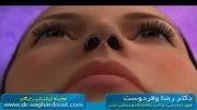 فیلم انیمیشن جراحی زیبایی و پلاستیک بینی