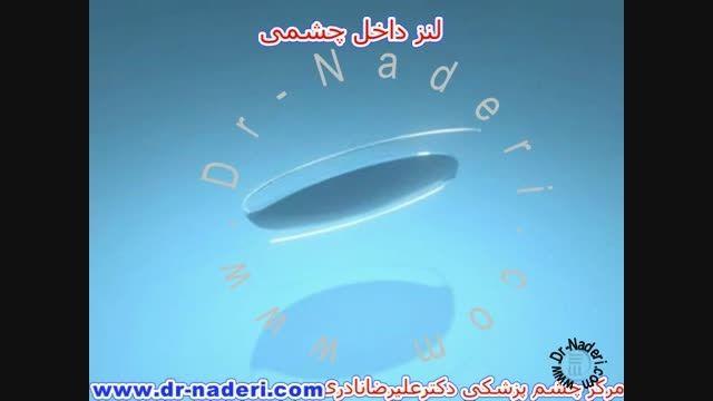 لنز های داخل چشمی - مرکز چشم پزشکی دکتر علیرضا نادری