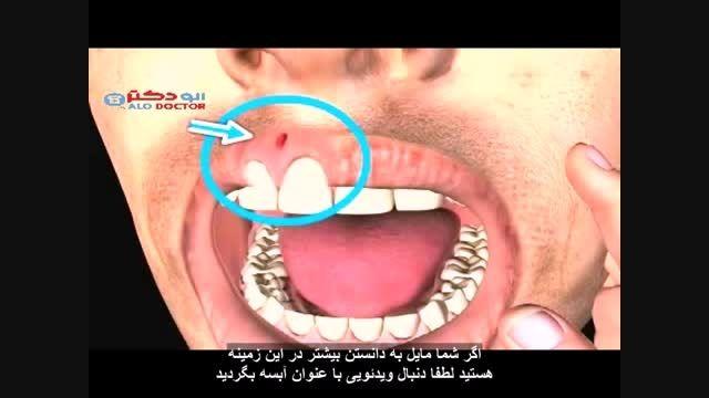 دکتر هنگامه مفاخر نکاتی درباره عصب کشی دندان می گوید