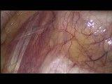 جراحی آندوسکوپیک قطع عصب سمپاتیک(درمان عرق کف دست)