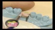 فیلم آموزشی دندانسازی - آموزش پرسلن گذاری