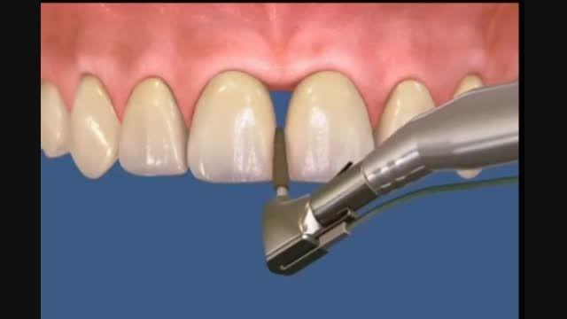 ترمیم فاصله بین دندان با کامپوزیت(مواد همرنگ دندان)