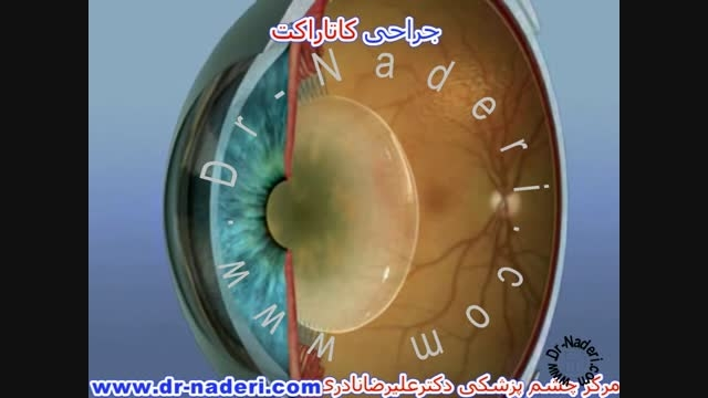 درمان کاتاراکت -سایت چشم پزشکی دکتر علیرضا ناد ری