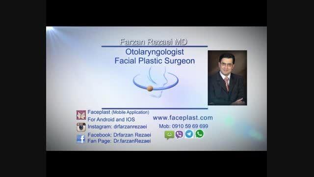 جراحی پلاستیک بینی(صوتی)