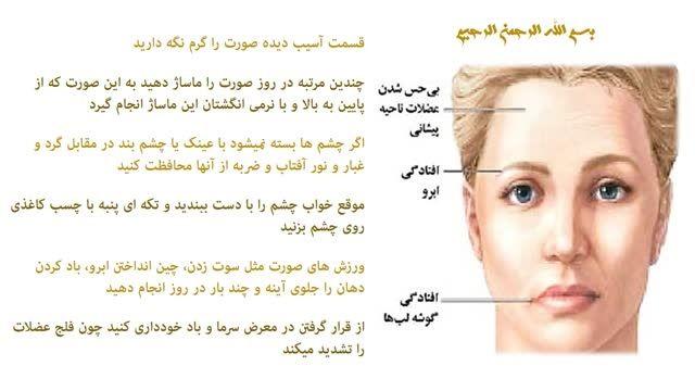 فلج عصب صورت