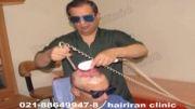 لیزر در کلینیک کاشت موی دکتر رضائی