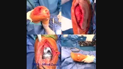 عمل جراحی تعویض مفصل زانو