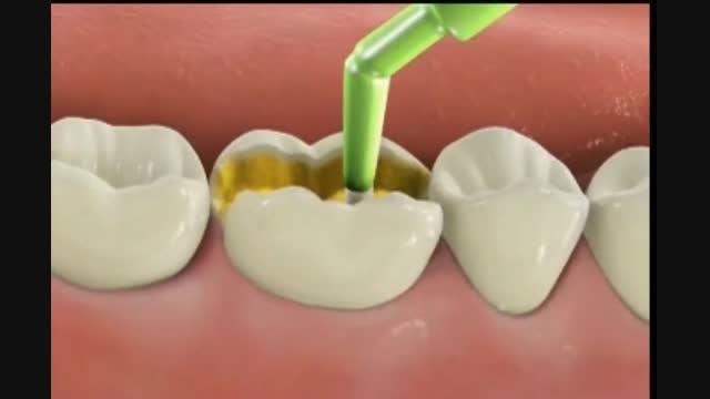 تخلیه آمالگام و پرکردن با کامپوزیت(مواد همرنگ دندان)