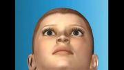 انیمیشن جراحی لیزیک (دکتر باب شریف)
