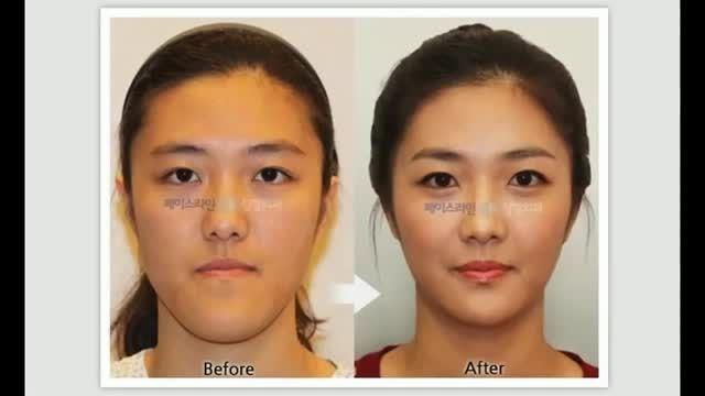 بازیگران کره ای قبل و بعد از عمل!