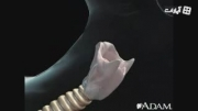 Cancer of the throat or larynx