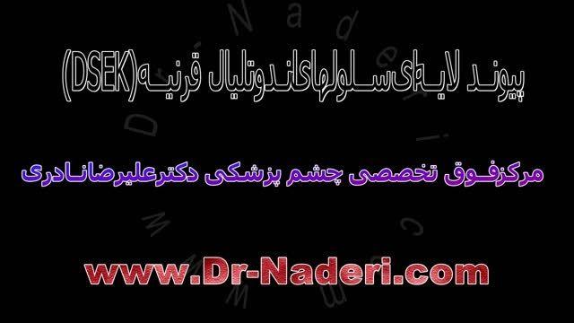 پیوند لایه ای دزک قرنیه-مرکزچشم پزشکی دکتر علیرضا نادری
