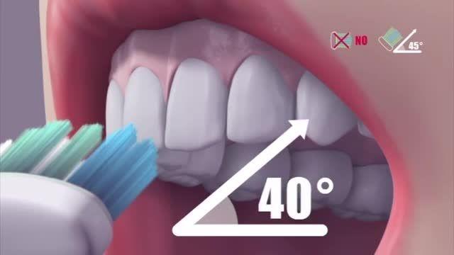 روش صحیح مسواک زدن دندان ها GUM