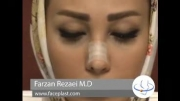 نحوه چسب زدن بینی بعد از عمل راینوپلاستی
