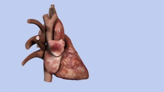 عمل جراحی قلب بسته