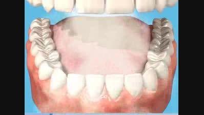اثر سیگارکشیدن برروی دندان ها