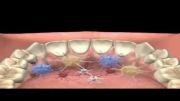 پوسیدگی دندان چیست؟ دندانپزشکی آبان