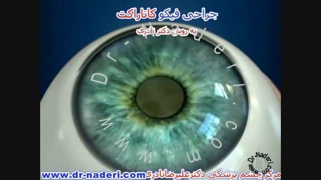 عمل جراحی فیکو - مرکز چشم پزشکی دکتر علیرضا نادری