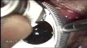 عمل لیزیک چشم