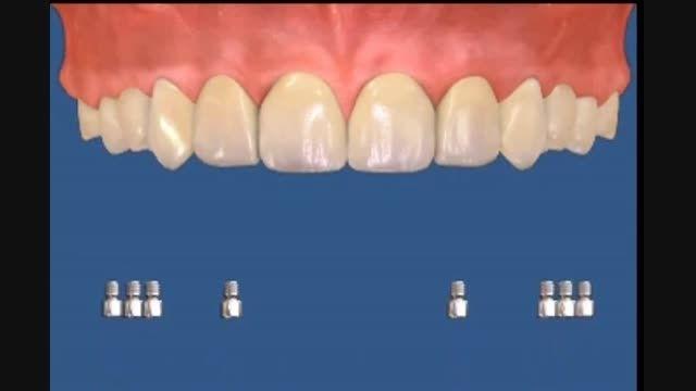 ایمپلنت کامل فک مرکز دندانپزشکی و زیبایی دکتر زهدی