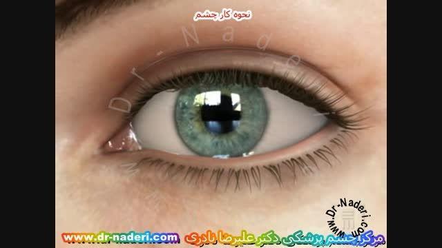 نحوه کار کره  چشم-مرکز چشم پزشکی دکتر علیرضا نادری