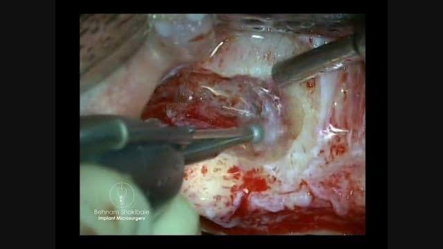 جراحی سینوس لیفت باز به سبک کلاسیک از دکتر شکیبایی