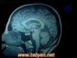 انتقال دهنده های عصبی -فعالیت مغز