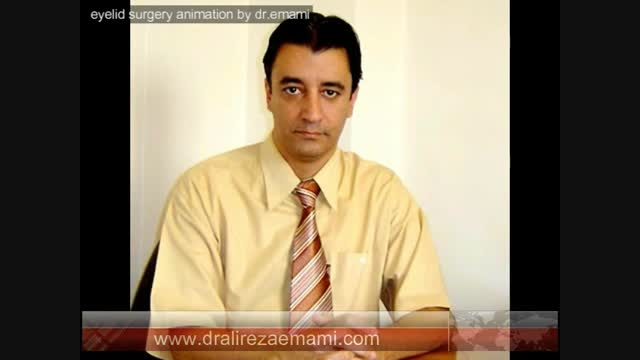 eyelid surgery animation by dr.emami