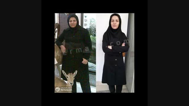 کلیپ رکوردداران کاهش وزن دکتر کرمانی