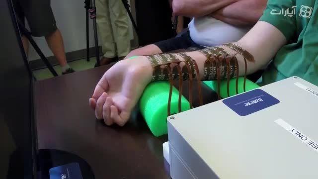 پل عصبی حرکت را به بازوی مرد فلج بازگرداند