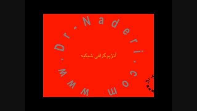 آنژیوگرافی شبکیه - مرکزچشم پزشکی دکتر علیرضا نادری