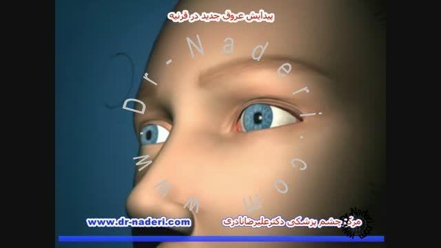 پیدایش عروق در قرنیه -مرکز چشم پزشکی دکتر علیرضا نادری