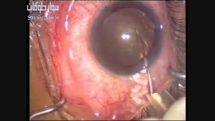 عمل جراحی آب مروارید چشم (Cataract Surgery)