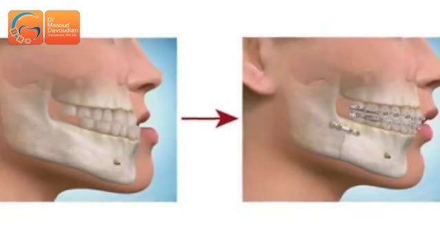جراحی فک بدون ارتودنسی | دکتر مسعود داودیان