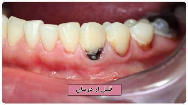 تراش دندان قدامی با لیزر و ترمیم با مواد همرنگ دندان