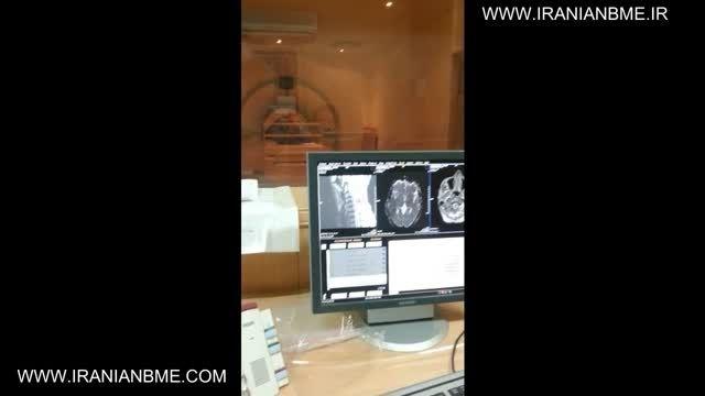 MRI چیست؟