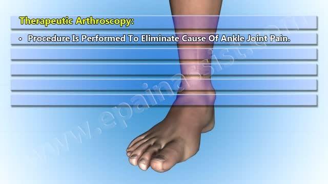 آرتروسکوپی مفصل مچ پا Ankle Joint Arthroscopy