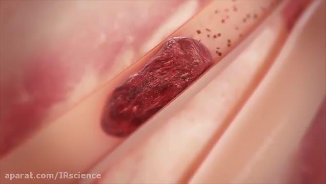 نمایش عمل جراحی لخته زدایی در رگ قلب